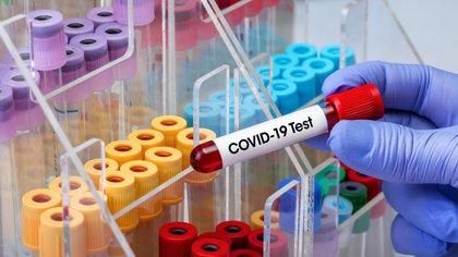 """""""Aún no se conoce hasta qué punto los anticuerpos del SARS-CoV-2 proporcionan inmunidad y protección futuras frente a infecciones repetidas"""" (Shutterstock)"""