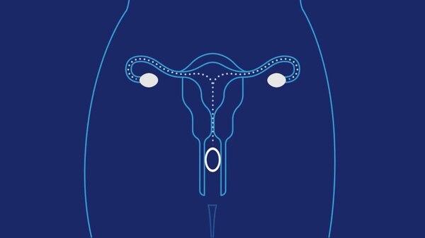 Los anilos vaginales actuales son transparentes y se colocan en la vagina cuando comienza el ciclo menstrual liberando una pequeña cantidad de hormonas sexuales femeninas.