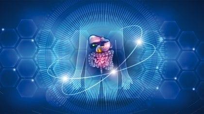 El Cáncer de Colon y Recto es una enfermedad que comienza en las células que tapizan la capa interna del intestino grueso, llamada mucosa (Shutterstock.com)