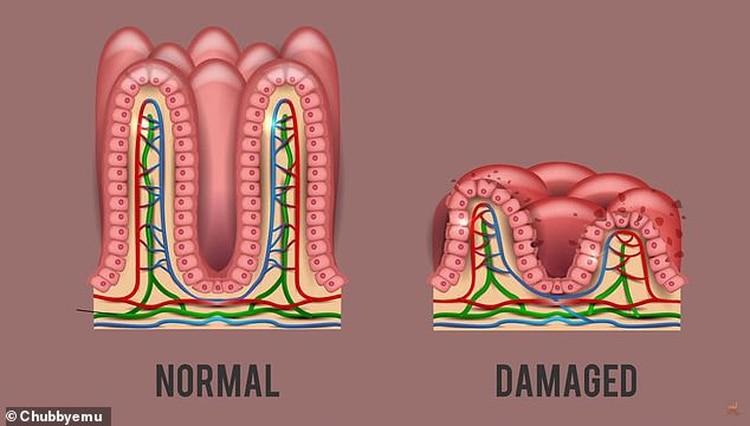 La ingestión de gluten provoca daños en el intestino delgado de los pacientes que padecen la enfermedad celíaca (Chubbyemu)