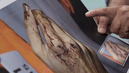 Las manos de Nisman cuyos restos fueron peritados