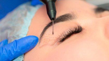 Los especialistas recomiendan hacer los tratamientos desde los 30 años (Shutterstock)
