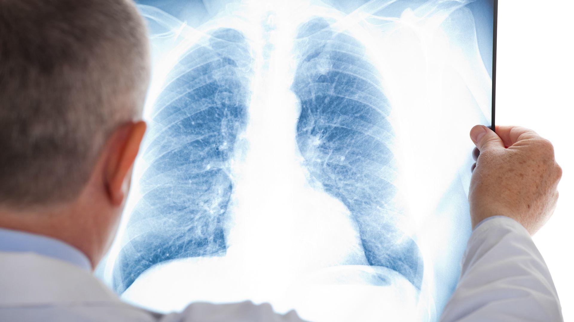 Un punto importante a tener en cuenta son las secuelas respiratorias que se presentan en los pacientes con COVID-19 (Shutterstock)