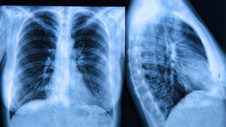 La Fibrosis Quística (FQ), es la enfermedad genética, con discapacidad visceral permanente y progresiva, más frecuente de la raza blanca (OMS)