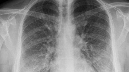 Así se ven los pulmones de un paciente con hábito de vapeo: densidades o áreas blanquecinas parecidas a nubes típicamente asociadas con algunas neumonías, líquido en los pulmones o inflamación (The New York Times)