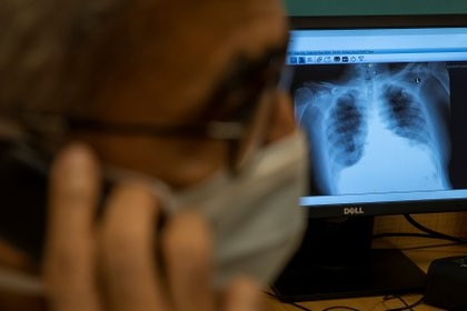 Cuando el ácido hialurónico se combina con una fuga de líquido hacia los pulmones, los resultados son desastrosos: forma un hidrogel que puede llenar los pulmones en algunos pacientes (REUTERS)