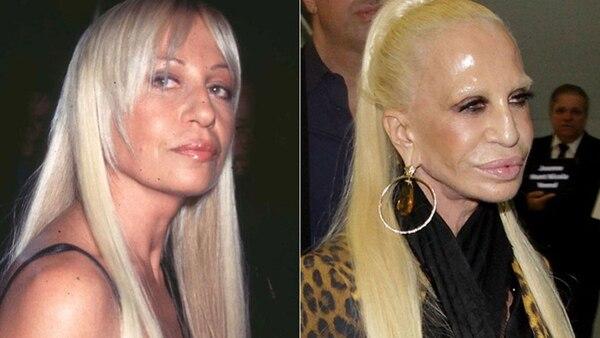 El antes y después de Donatella Versace