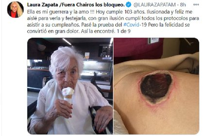 One of the images of the ulcers that Eva Mange had (Photo: Twitter @LAURAZAPATAM)