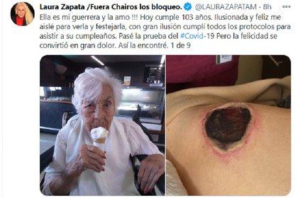 Laura Zapata compartió a través de Twitter imágenes de las lesiones de su abuela  (Foto: Twitter @LAURAZAPATAM)