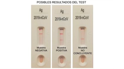 Como este coronavirus es tan silencioso como transmisible, hace falta un despliegue masivo de análisis (Ministerio de Sanidad de España)