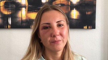 La foto que  la estudiante de 22 años compartió tras la golpiza