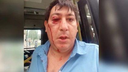 """""""Con una mano me arranca la mampara y con la otra me tira un piedrazo"""", afirmó David Franco sobre el hombre que lo agredió"""