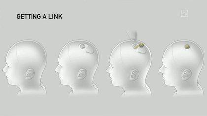 Así son los chips de Neuralink, presentados el 28 de agosto 2020