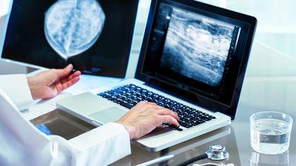 La evaluación de la densidad mamaria generalmente se realiza en función de la cantidad de tejido fibroglandular en relación con el tejido graso presente en la mamografía (Shutterstock)