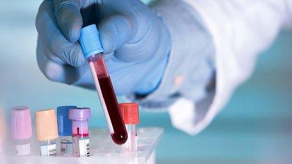 Los análisis de sangre deben solicitarse de forma selectiva y para indicaciones clínicas específicas después de una historia y un examen cuidadosos (BLUEBERRY DIAGNOSTICS / Europa Press)