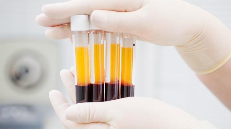 """En diálogo con Infobae, la inmunóloga Lorena Regairaz, explicó: """"el circuito empieza con la donación de plasma de personas que tuvieron COVID-19, y a los 14 días de haber negativizado la PCR, y a los 28 días del inicio de los síntomas"""