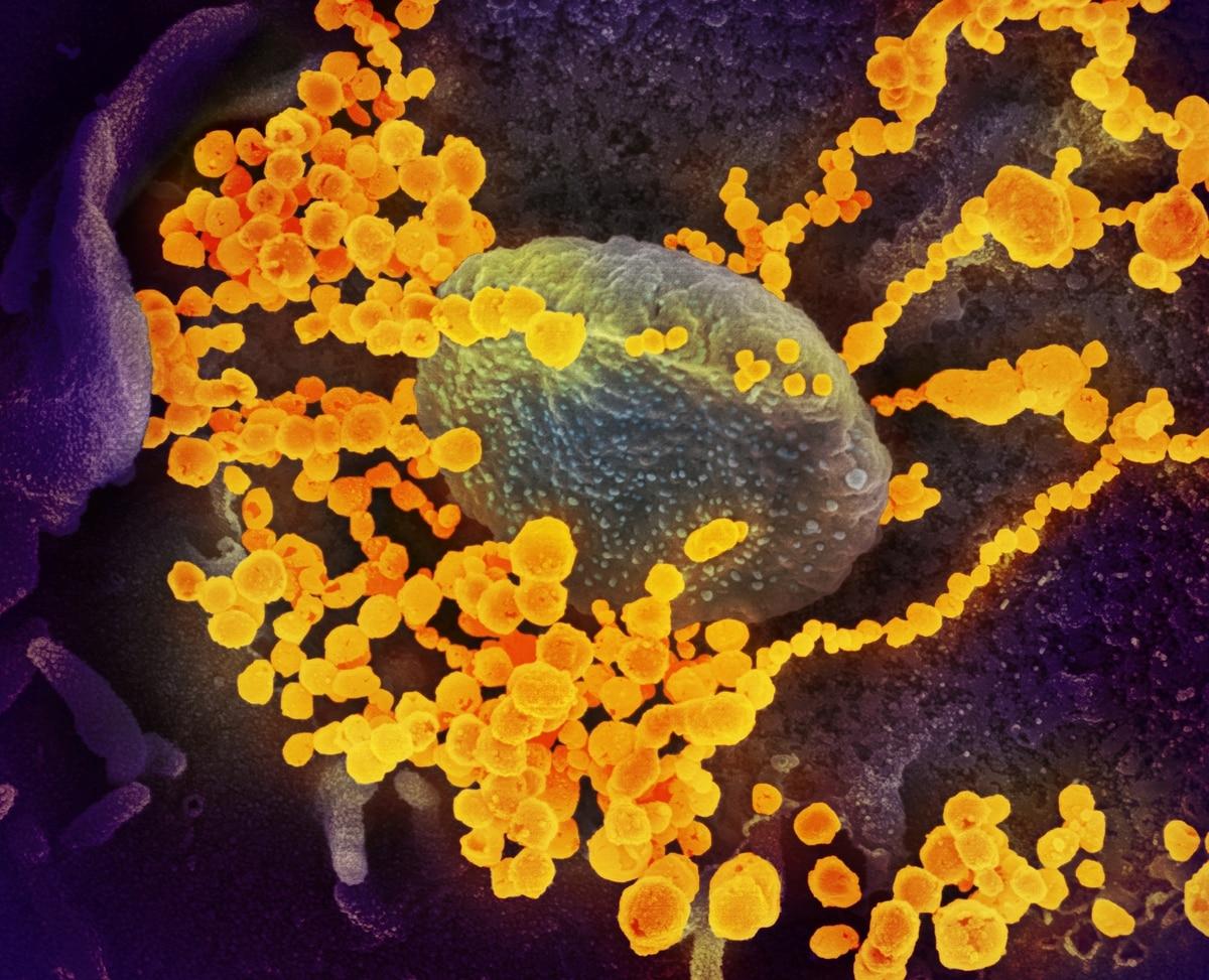 """""""Un lobo con piel de cordero"""": científicos descubrieron cómo hace el coronavirus para engañar al cuerpo humano - Infobae"""