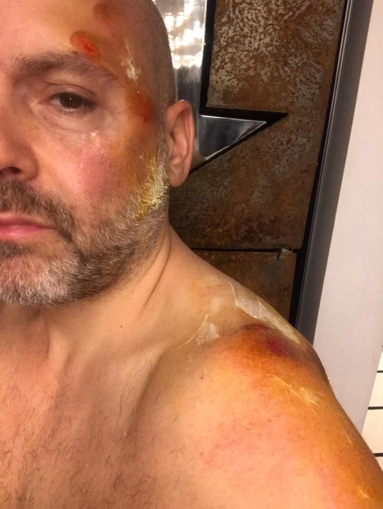 Las heridas que José María Muscari debe sanar luego de haberse caído de un monopatín.