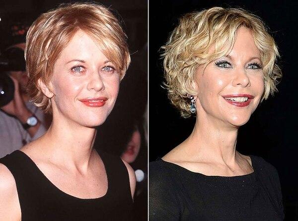 El ante y después de Meg Ryan