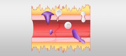 Un vaso sanguíneo normal, que se muestra a la izquierda, se compara con un vaso sanguíneo afectado por un exceso de bradicinina. Un sistema de bradicinina hiperactivo permite que el líquido, que se muestra en amarillo, se filtre y permite que las células inmunes, que se muestran en púrpura, se escapen de los vasos sanguíneos (Oak Ridge National Laboratory)