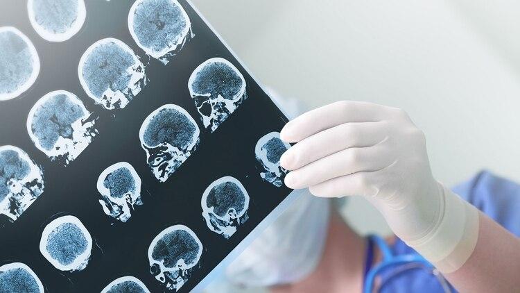 En modelos con ratones, las infecciones orales de Pg llevaron a la colonización del cerebro (Getty)
