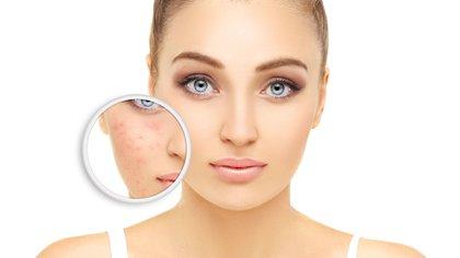 Los probióticos proporcionan una ayuda antiinflamatoria contra la rosácea y la piel sensible (Shutterstock)