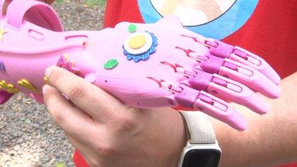 Así son las prótesis fabricadas con impresoras 3D