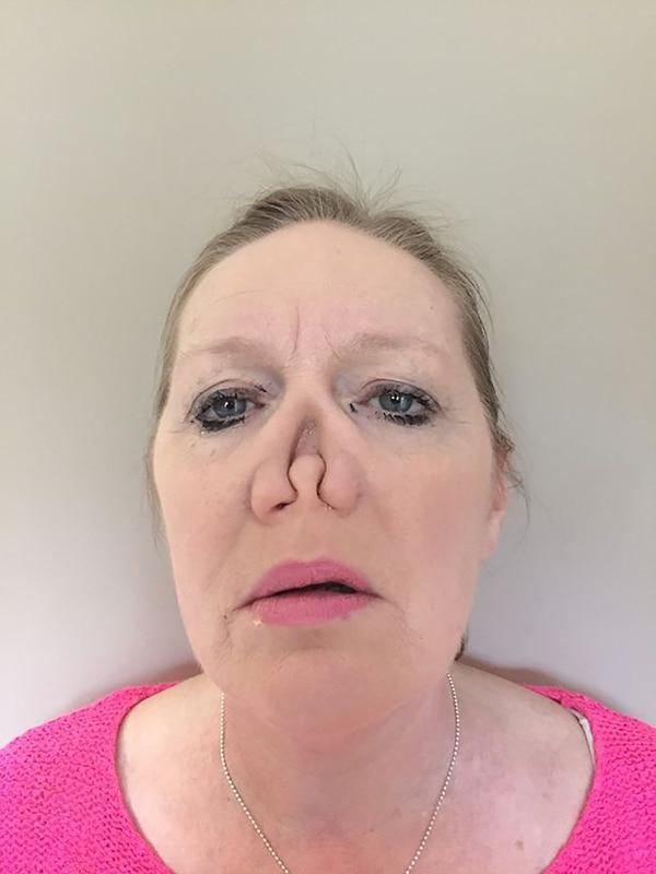 La enfermedad le fue pudriendo la nariz hasta que debieron amputársela