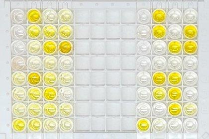Presencia de más anticuerpos reflejada en las muestras de color amarillo más intenso (F. Leloir)