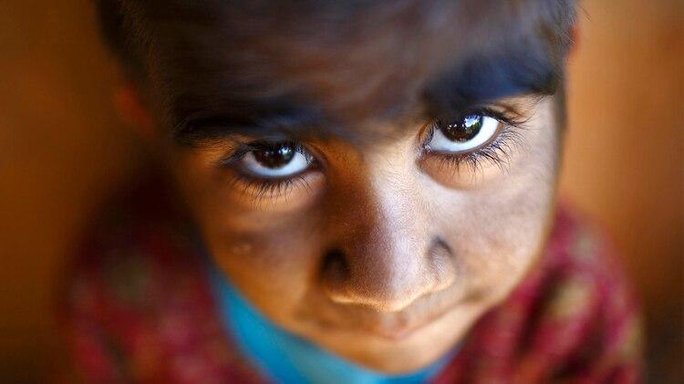 Mandira Budhathoki, de 7 años, posa para una fotografía mientras juega fuera de su casa en Kharay, en el distrito de Dolkha, a unos 190 kilómetros al noreste de Katmandú, el 15 de septiembre de 2013. Él y sus dos hermanos,Manjura y Niraj, sufren de Hipertricosis Congénita Lanuginosa (Reuters)