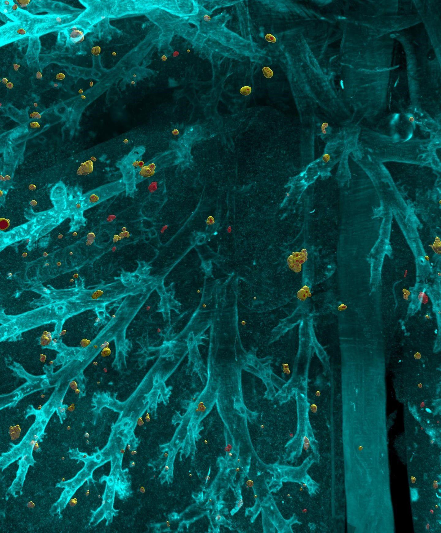 12/12/2019 Células cancerígenas individuales diseminadas que se extienden a través del pulmón. SALUD HELMHOLTZ ZENTRUM MÜNCHEN