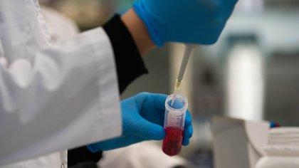 El suero equino hiperinmune se desarrolló en el Laboratorio de la Universidad San Martin por Inmunova, Grupo Insud (Foto: Franco Fafasuli)