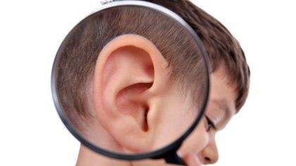 Las orejas en asa o desplegadas hacia adelante son una de las principales consultas en niños y adolescentes (Getty Images)