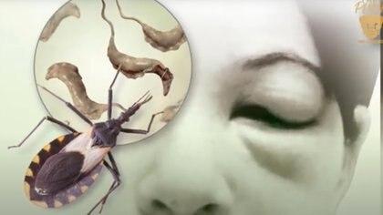 En México, más de un millón de personas padecen la enfermedad de Chagas, que afecta principalmente al corazón y las neuronas Foto: (UNAM)