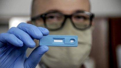 El test rápido serológico fue desarrollado por investigadores de La Plata (Télam)