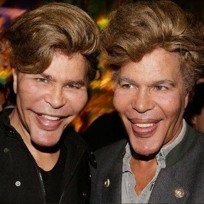 Igor y Grichka Bogdanoff han transformado completamente su rostro a través de la cirugía plástica (Instagram: mattpopofficial)