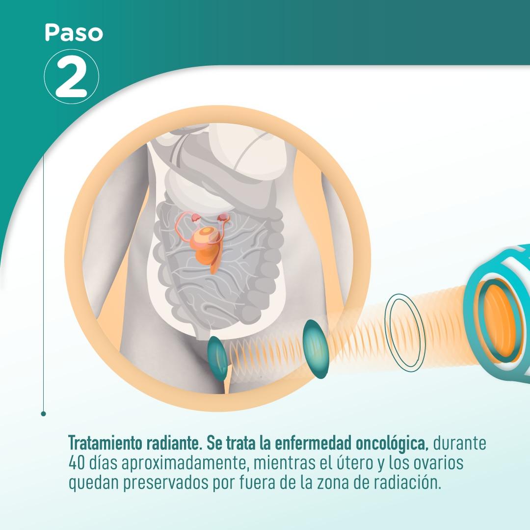 Transposición uterina
