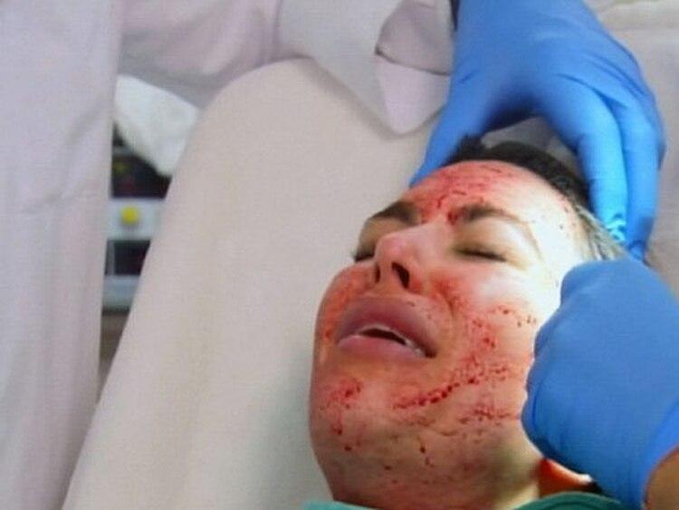Kim Kardashian sometiéndose a un facial vampiro
