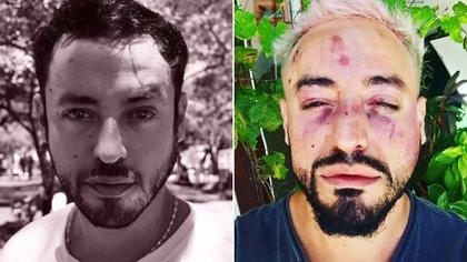 """Así quedó Franco Ruiz tras la brutal golpiza. """"Me desfiguraron la cara"""", dice a Infobae (Fotos / Facebook Franco Ruiz y @francotorchia_)."""