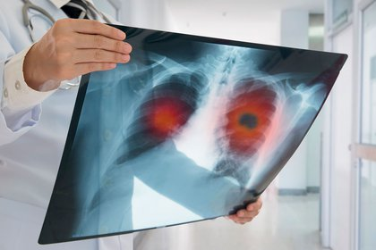 En el mundo, se estima que para 2020 habrá unos 2,2 millones de casos nuevos de cáncer de pulmón, lo cual equivale al 11% del total de casos diagnosticados (Shutterstock)