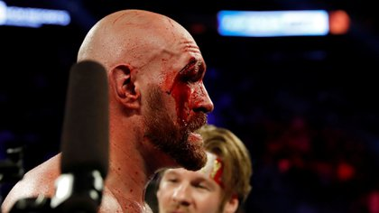 Tras su pelea con Wallin recibió 47 puntos de sutura (Foto: Reuters)