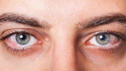 Existen pacientes que, durante el proceso del coronavirus, presentan conjuntivitis (Foto: Shutterstock)