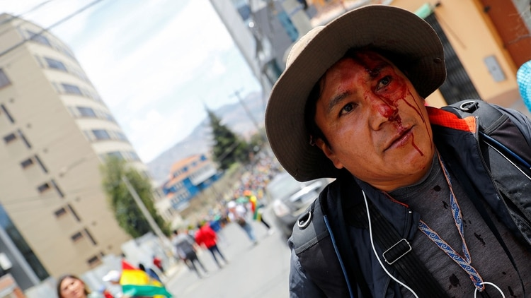Un manifestante herido en La Paz (Reuters)