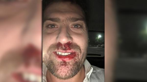 Santiago Elizalde viajaba en Cabify y fue atacado por taxistas