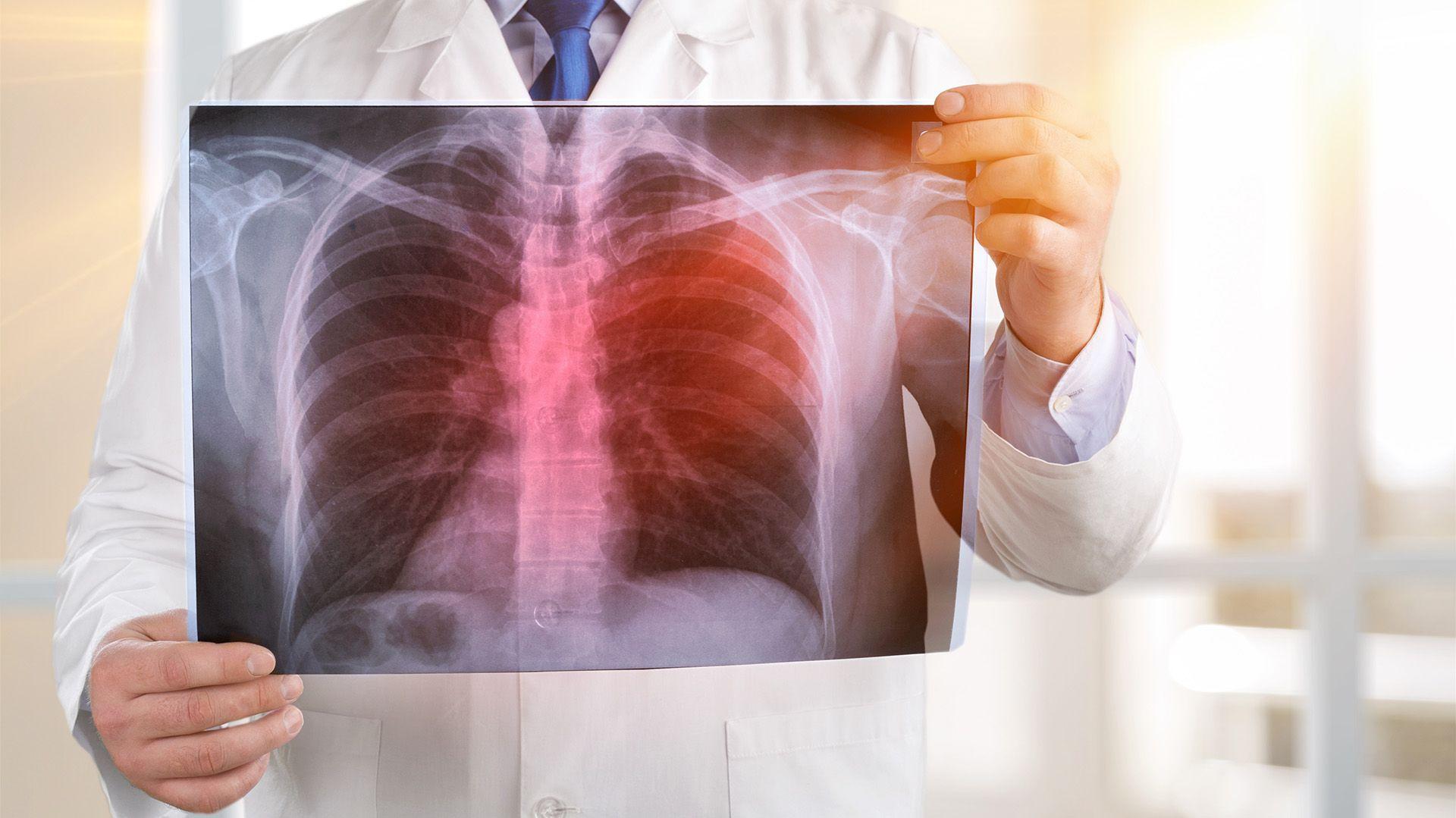 La tuberculosis es una enfermedad infectocontagiosa, prevenible y curable (Shutterstock)