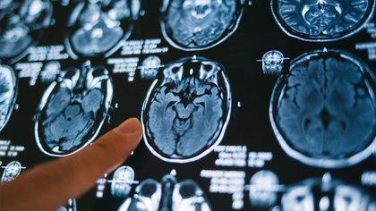 El estudio del cerebro cada vez amplía con nuevas investigaciones (Shutterstock)