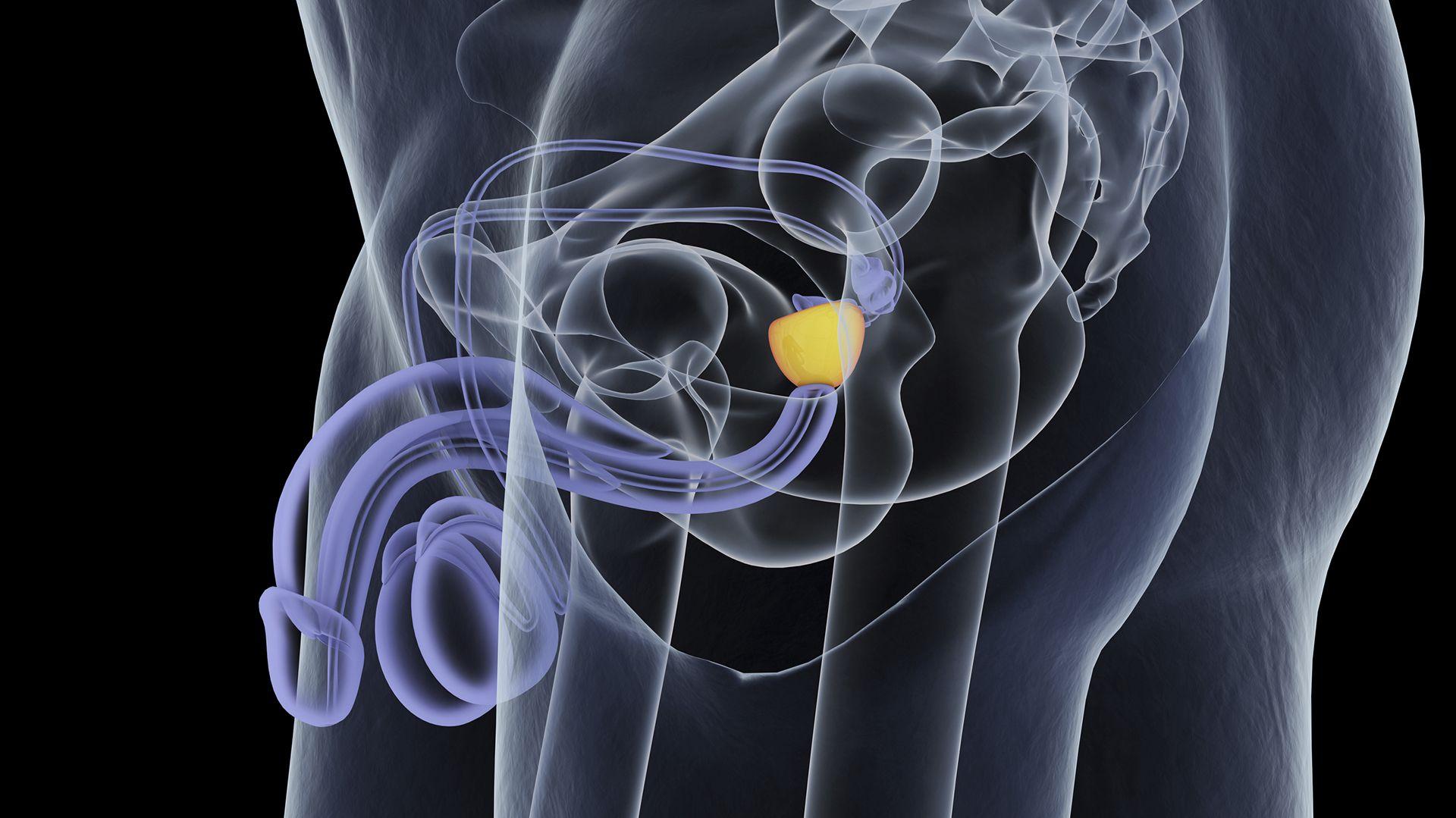 El cáncer de próstata es la segunda muerte por cáncer en el varón adulto, en donde 1 de cada 6 hombres desarrollará cáncer de próstata a lo largo de su vida  (Getty)