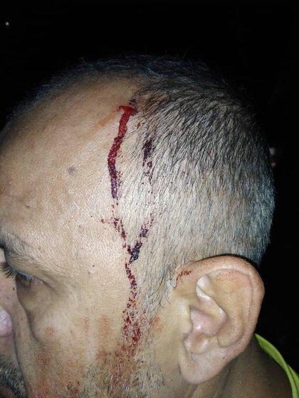 El padre del periodista fue herido en la cabeza
