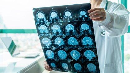 Un médico analiza una tomografía (Shutterstock)