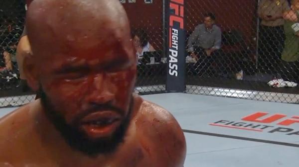 Así quedó el rostro de Don'Tale Mayes, el vencedor de la pelea ante Mitchell Spide